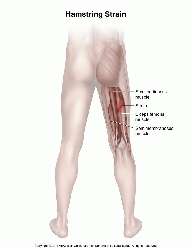 an analysis of strains of the hamstring and groin Like smith, vea also suffered a hamstring strain at the combine this year hamstring strains can be tricky and tend to linger this is something to keep an eye on.